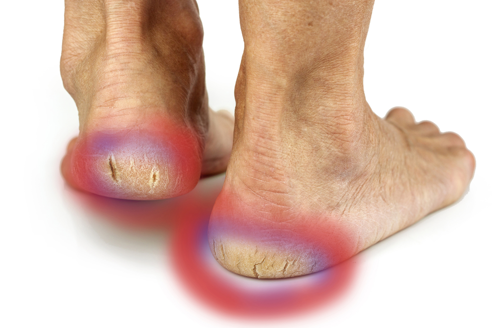 Do you want to get serious about fixing cracked heels?